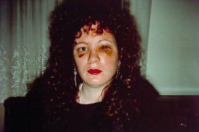 visage tuméfié de Nan Goldin, autoportrait cru, fidèle à l'art photographique de l'artiste qui colle à ses proches/sujets et traite la violence avec une sophistication technique et virtuose délibérément cathartique. ( 1984)