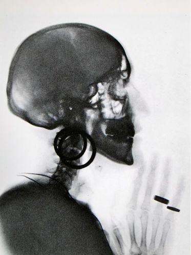 Meret Oppenheim, artiste surréaliste, au delà des apparences